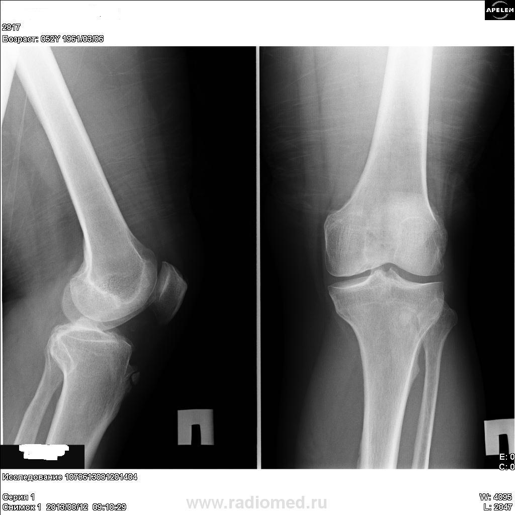 Умеренный остеосклероз суставных поверхностей болит локоть плечо лечение