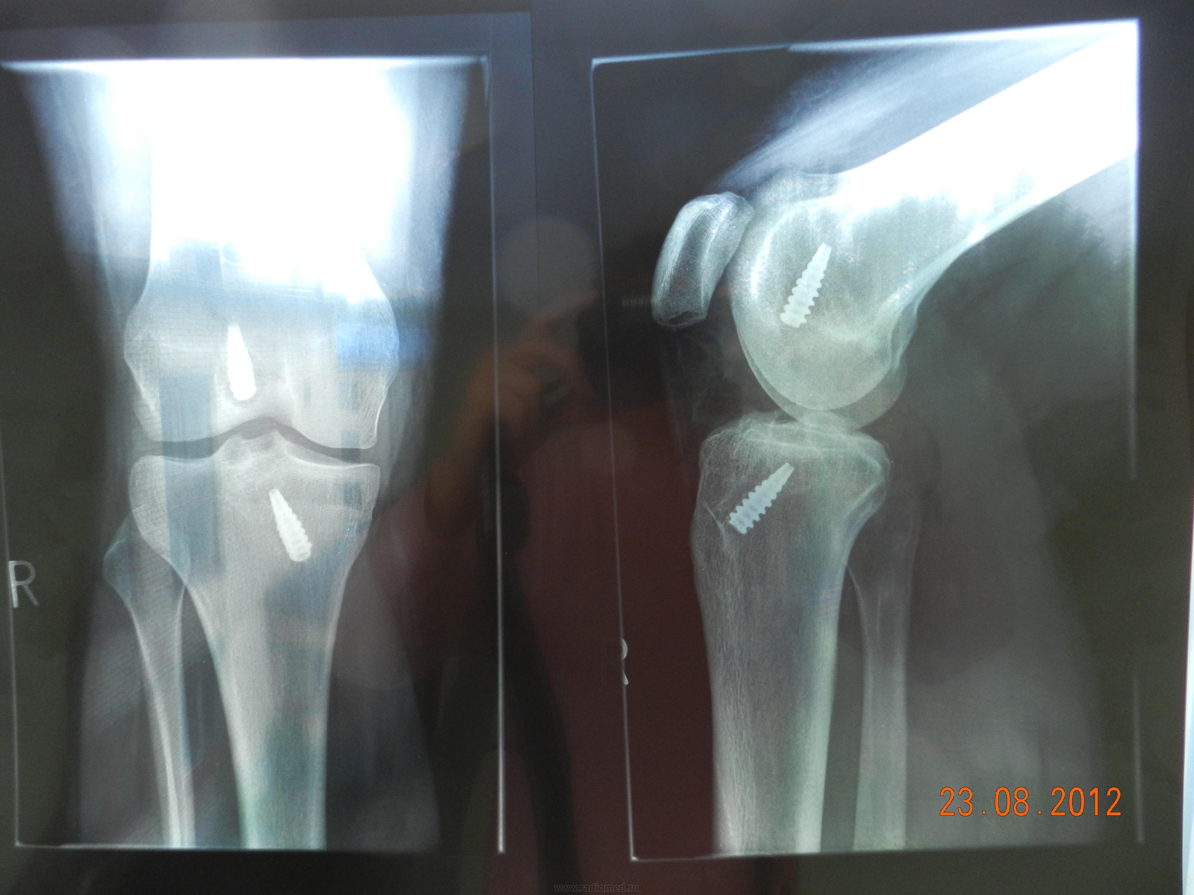 пластика крестообразной связки коленного сустава отзывы