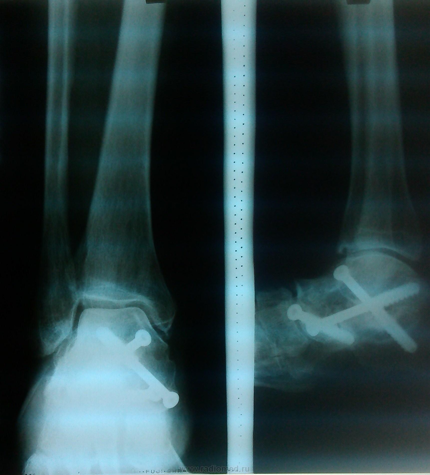 Артроз таранно-пяточного сустава радиомед узловатые суставы о чем говорят
