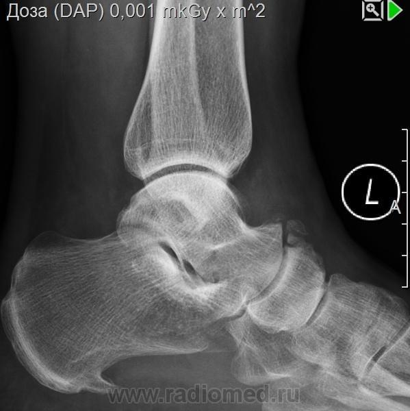 фото ниже перелом ладьевидной кости стопы фото болезнь