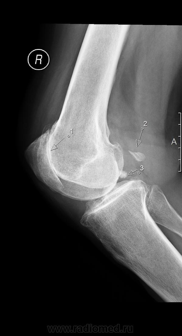 Известковый бурсит коленного сустава дона порошок для суставов отзывы аналоги