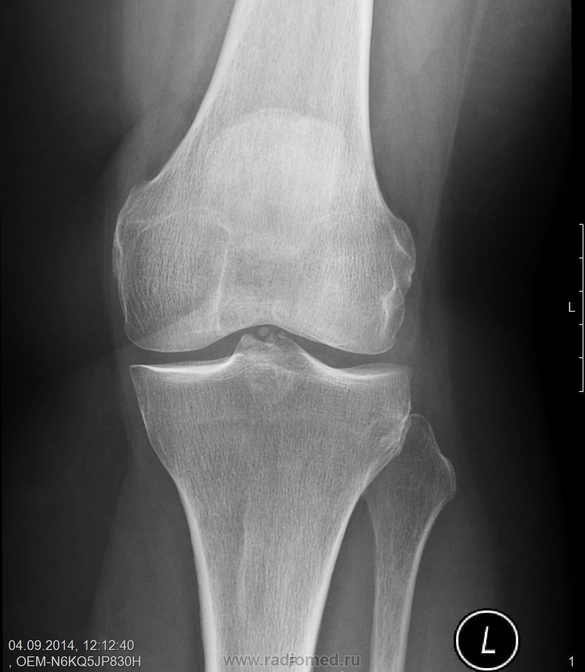 Хондромное тело в коленном суставе рентгенодиагностика замена тазобедренного сустава в енакие