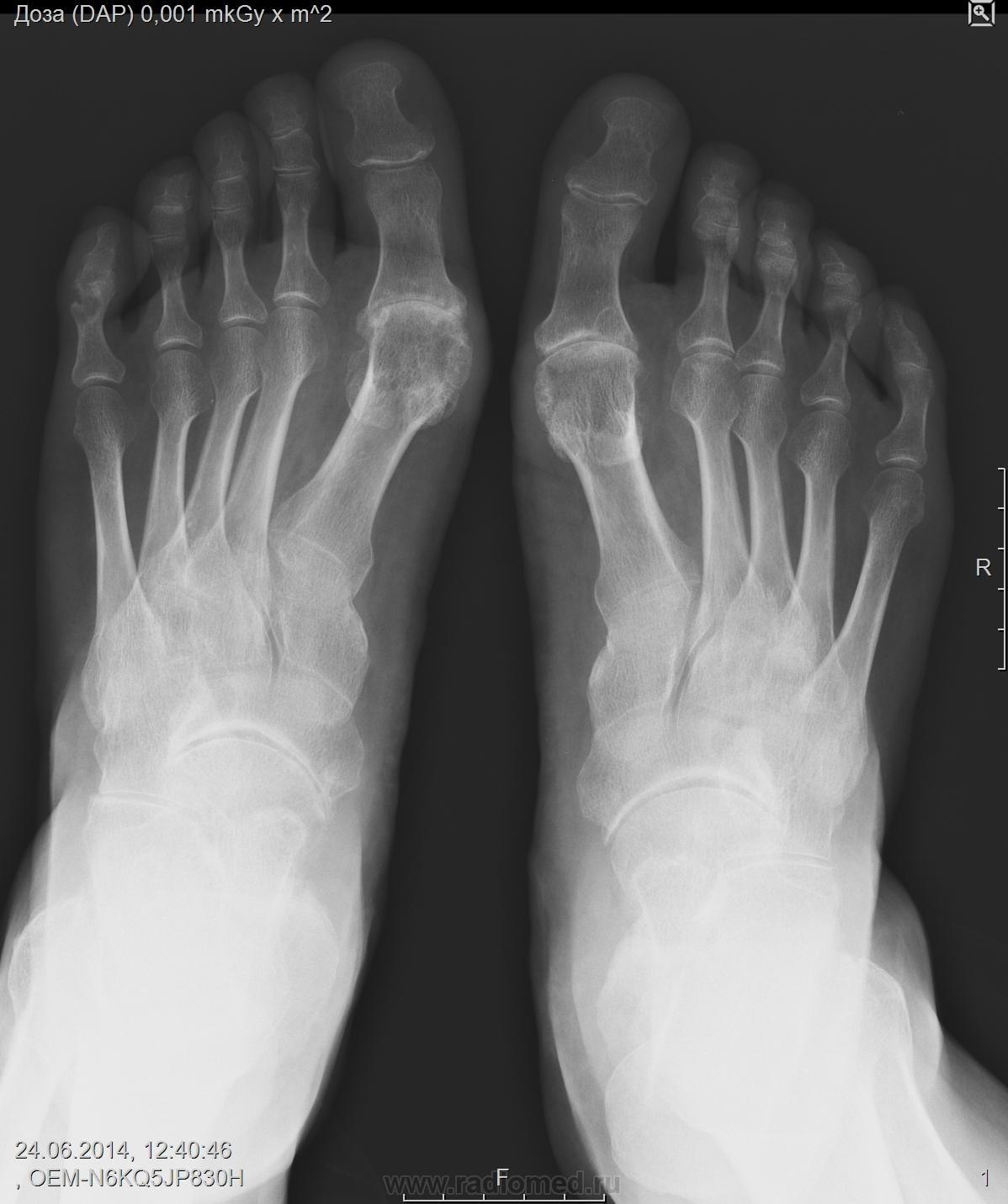 Подагрический артрит? | Портал радиологов