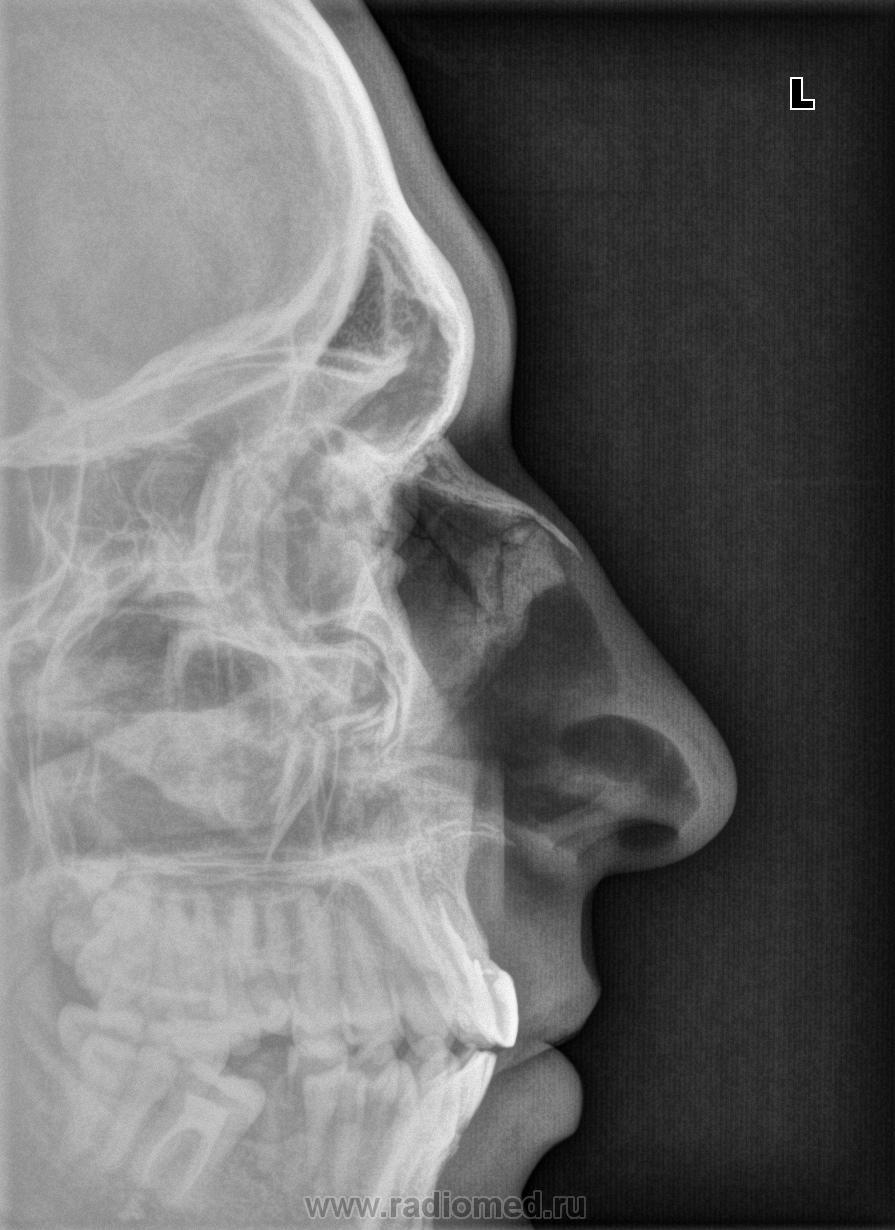 Есть ли травма? | Портал радиологов