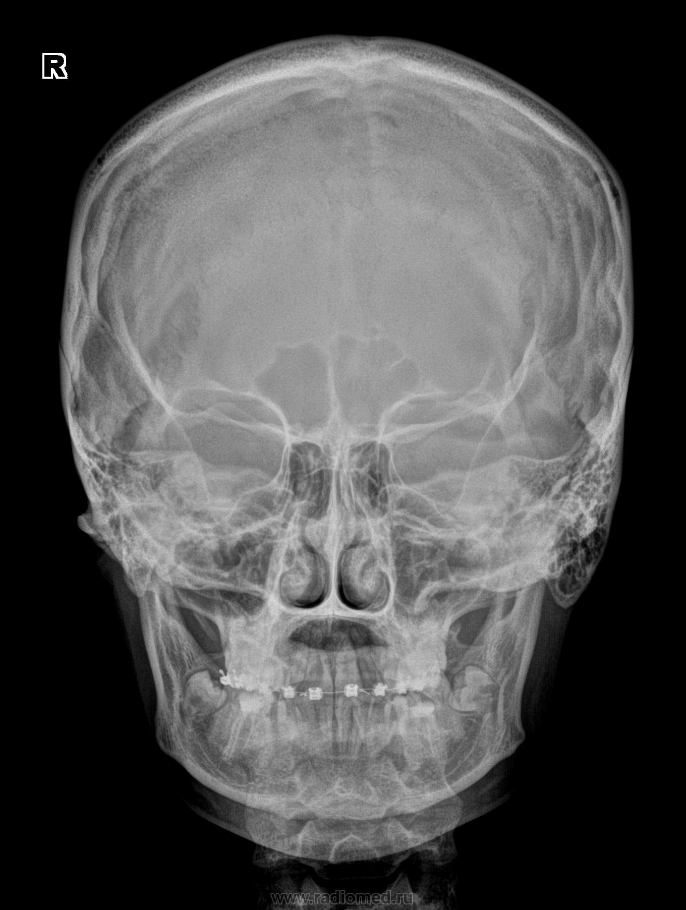 Рентген черепа внутричерепного давления