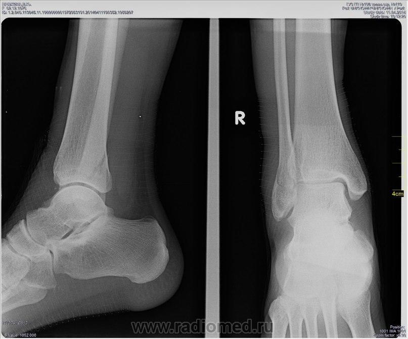 Перелом наружной лодыжки | Портал радиологов