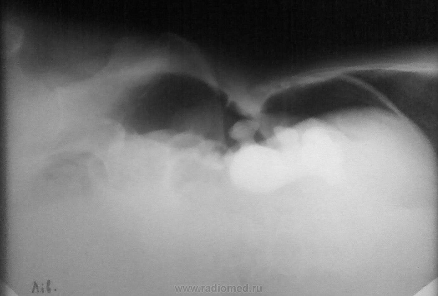 Пневмоперитонеум