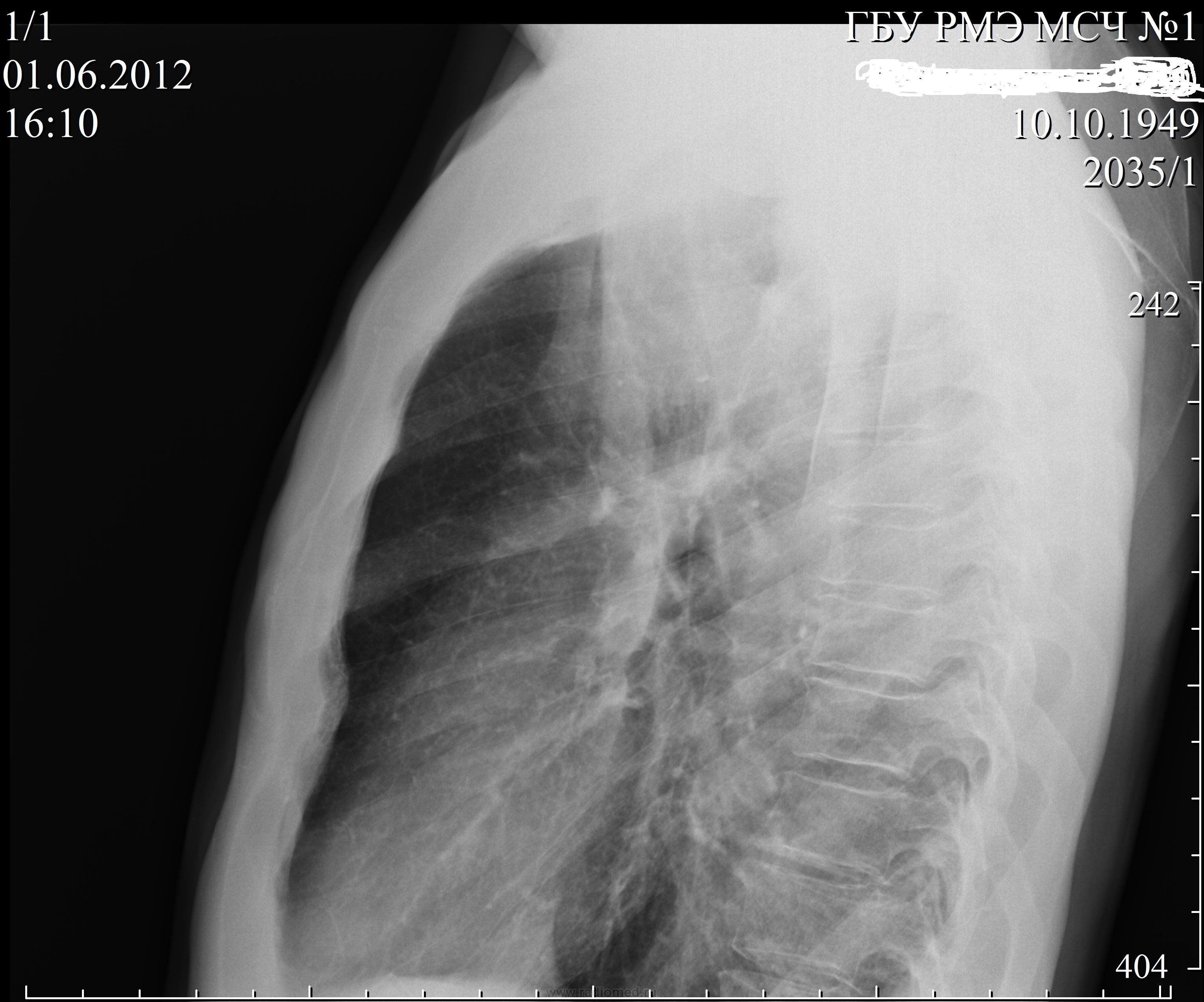 Рак верхушки лёгкого с синдромом Панкоста