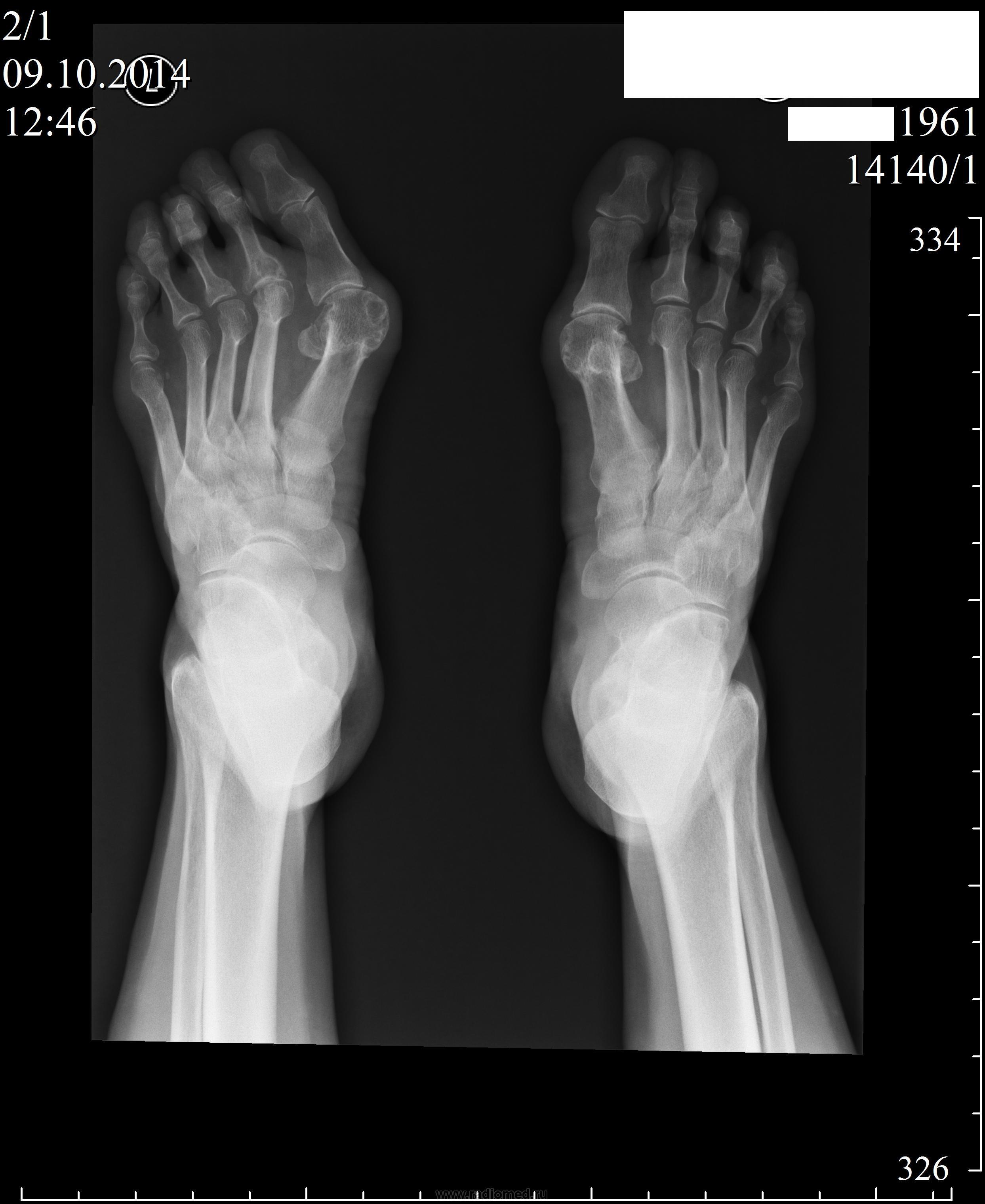 Артроз суставов кистей симптомы фото
