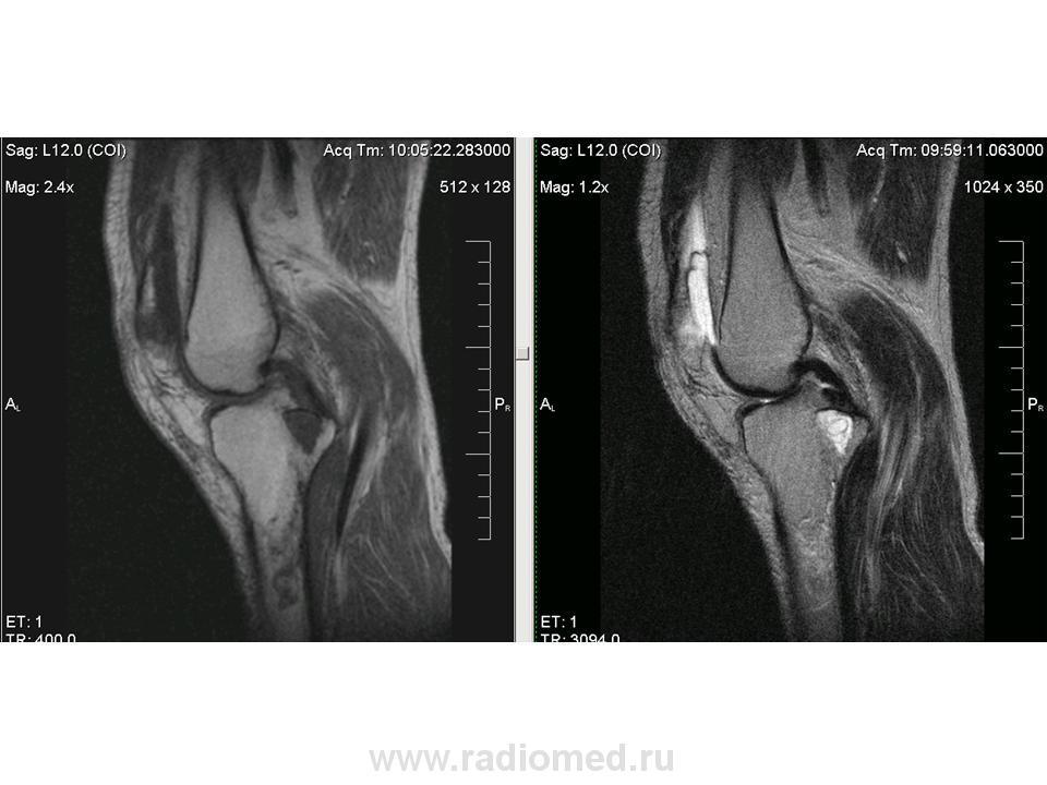 Мрт коленного сустава сво синовиальный хондроматоз локтевого сустава фото