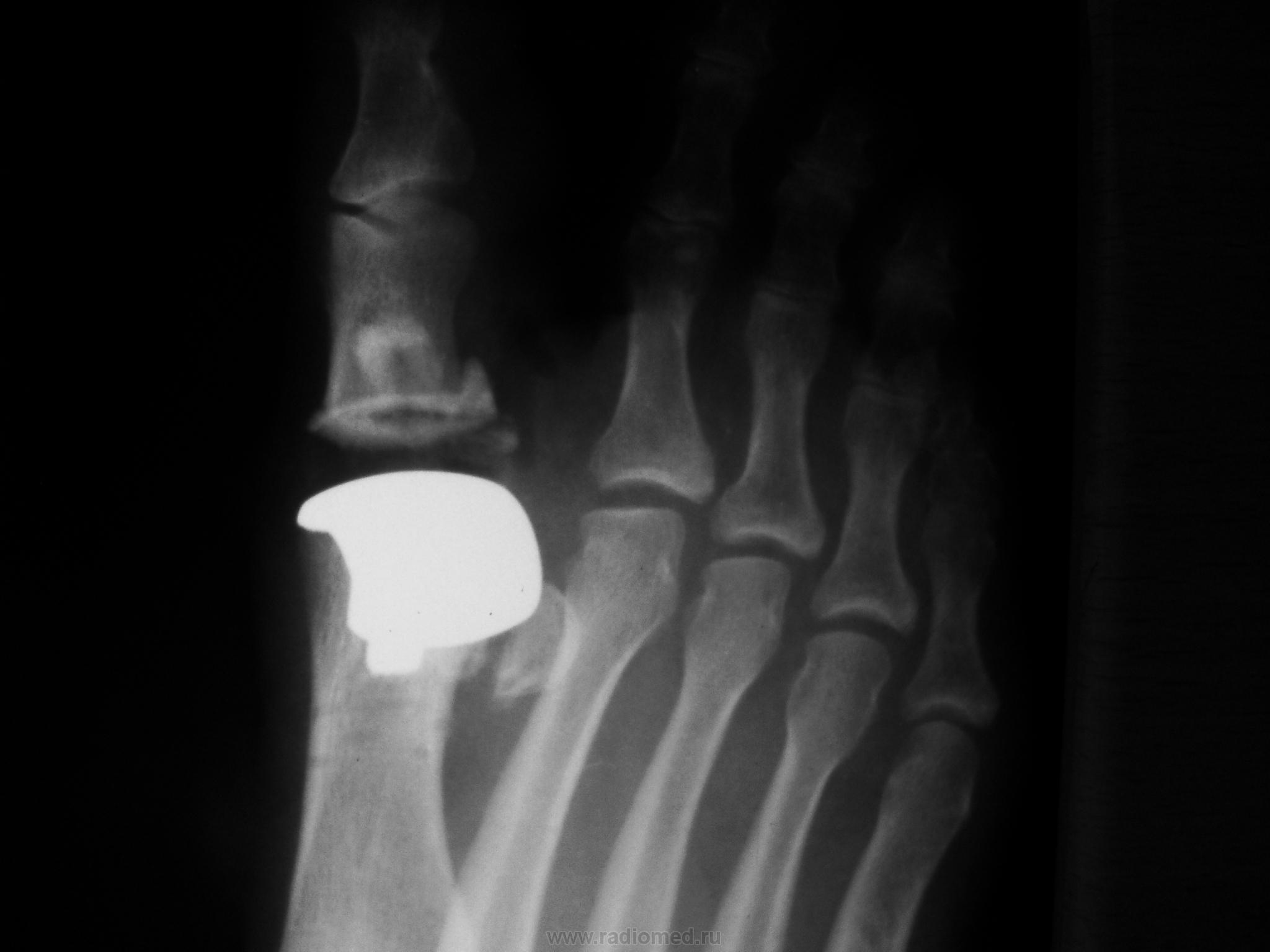 Плюстне-фалангового сустава перелом лучезапястного сустава надо ли делать операцию