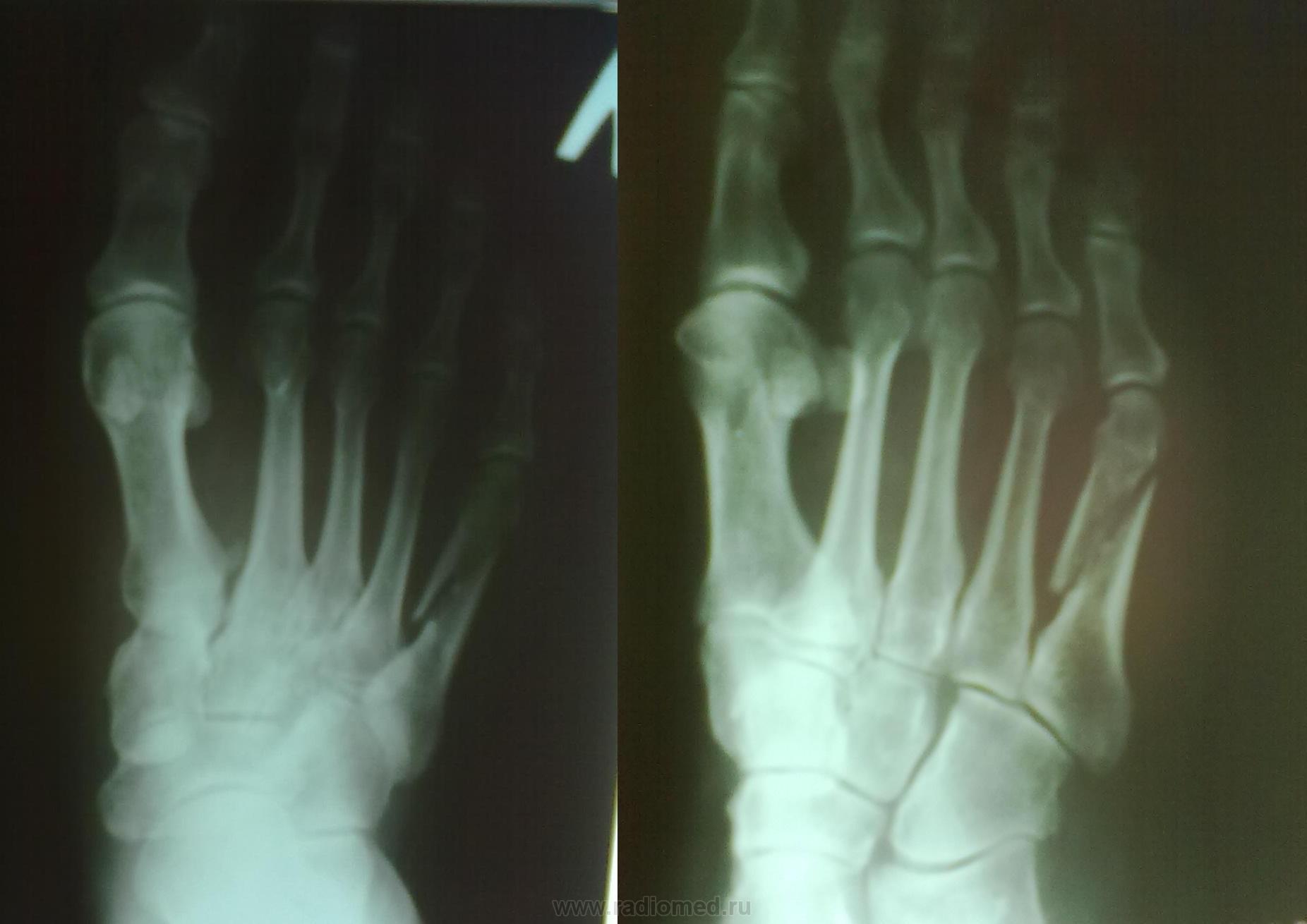 Смещение кости в суставе 5 букв как лечить артрит и артроз тазобедренного сустава