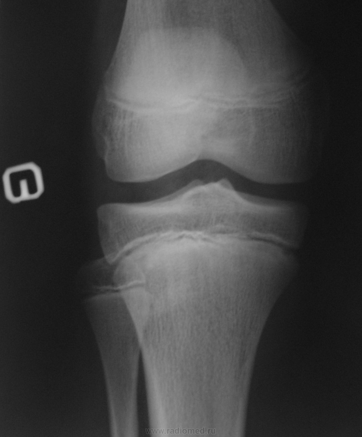 Коленный сустав ребенка мышечные боли в локтевом суставе