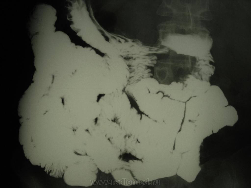 Оментэктомия фото