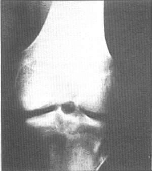Сужение суставной щели надколенника центральные остеофиты влияние различных факторов на развитие заболеваний суставов
