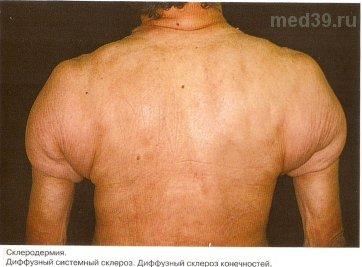 эозинофильный фасциит фото