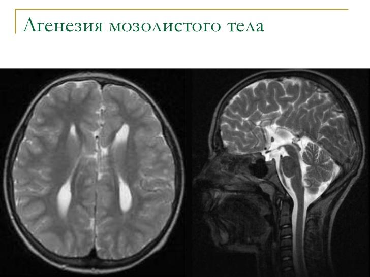 Гипогенезия мозолистого тела что это такое