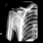 000001_web.osteopoikilosis.jpg
