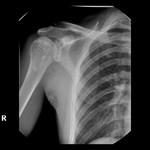 000002_web.osteopoikilosis.jpg