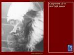 1.rak_.3.karc_.slayd68.jpg