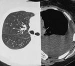 11.4.s_lymphangioleiomyomatosis.jpg
