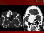 111.osteoma.slayd162_0.jpg