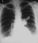 13.chest_carcinoma_bronchus_lll_c.jpg