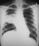 18.chest_carcinoma_rml_pa.jpg