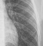3.thorax-1.jpg