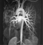4._gipoplaziya_pravoy_legochnoy_arterii..jpg