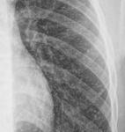4.thorax-1a.jpg