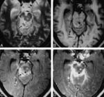 51.tuberkuleznyy_meningit_s_tuberkulemy..jpg