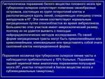 6.tu_..slayd32.jpg