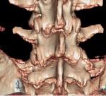 bifida.jpg