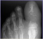 08_diabetic_foot.jpg