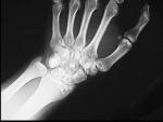 1.wrist_osteopoykilosis.jpg