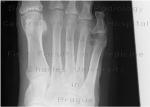 10_diabetic_foot.jpg