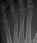 12_diabetic_foot.jpg