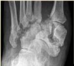 21_diabetic_foot.jpg
