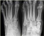 22_diabetic_foot.jpg