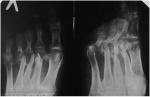 25_diabetic_foot.jpg