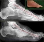 29_diabetic_foot.jpg