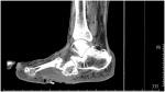 48-9_diabetic_foot.jpg