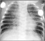 080_chlamydial_pneumonia.jpg