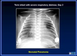 106_term_infant_day_2_pneumonia.jpg
