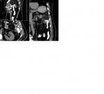 3d_mpr_-_kamzin_b._66y_-_05.08.2019_12_42_16_-_abdomen_1.0_b20f_0000.jpg