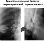 biopsiya.jpg