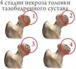 lechenienekrozagolovkitazobedrennogosustava2.jpg