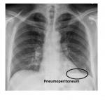 pneumoperitoneum.jpg