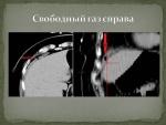 prezentaciya_microsoft_powerpoint_2.jpg